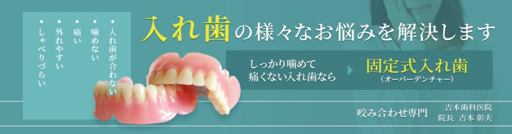 よく噛めて目立たない入れ歯、外れない磁石式の入れ歯 香川県高松市の吉本歯科医院