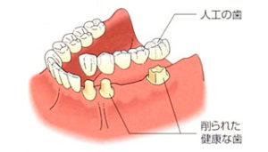 高松市の総入れ歯
