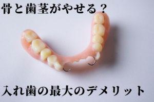 入れ歯のデメリット