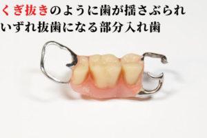 部分入れ歯のデメリット
