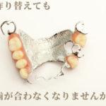 何回作り替えても入れ歯が合わなくなる理由