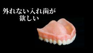 外れない入れ歯|香川県高松市の吉本歯科医院